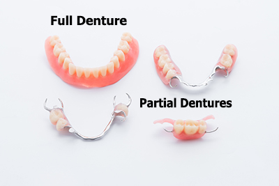 photo of dentures
