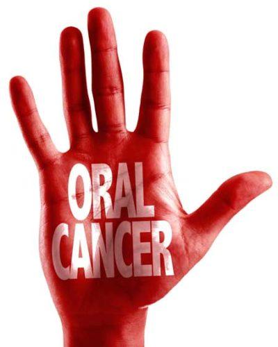 oral cancer screening in ne calgary