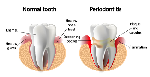 Illustration showing tooth in periodontics article