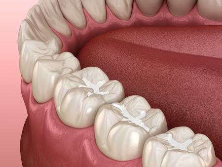illustration of dental sealants