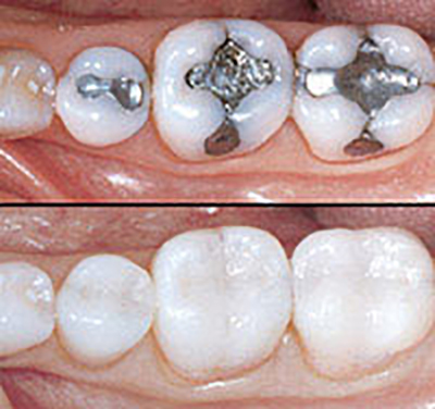 photo of before and after tooth coloured fillings